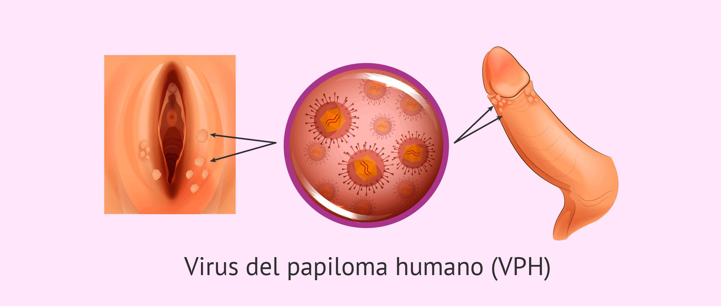 virus del papiloma en la mujer como curar el papiloma en la boca