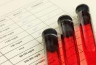 Analize la paraziti la om - Detoxic
