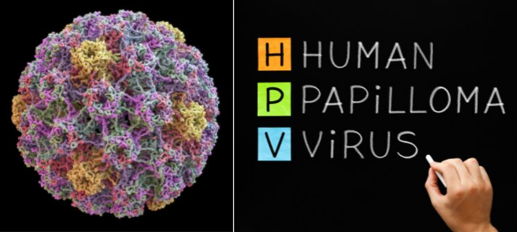 human papilloma virus is cancer gastric stadii