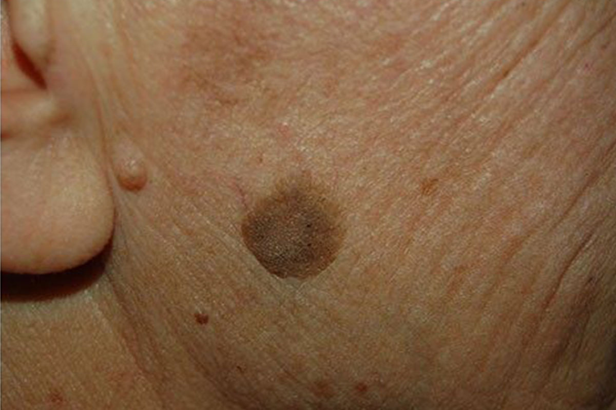 cancer testicular ultrasonido