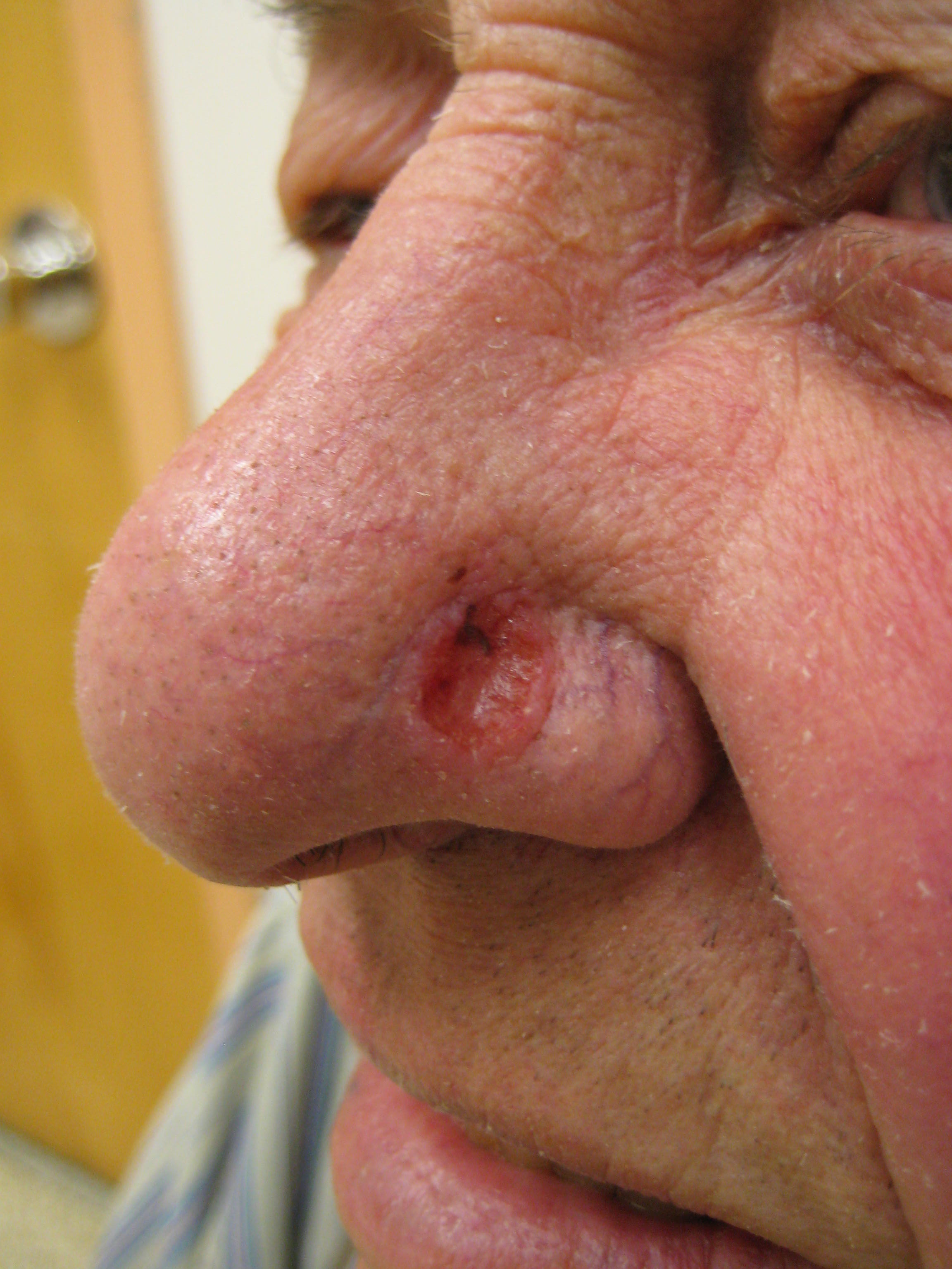 squamous papilloma in the mouth