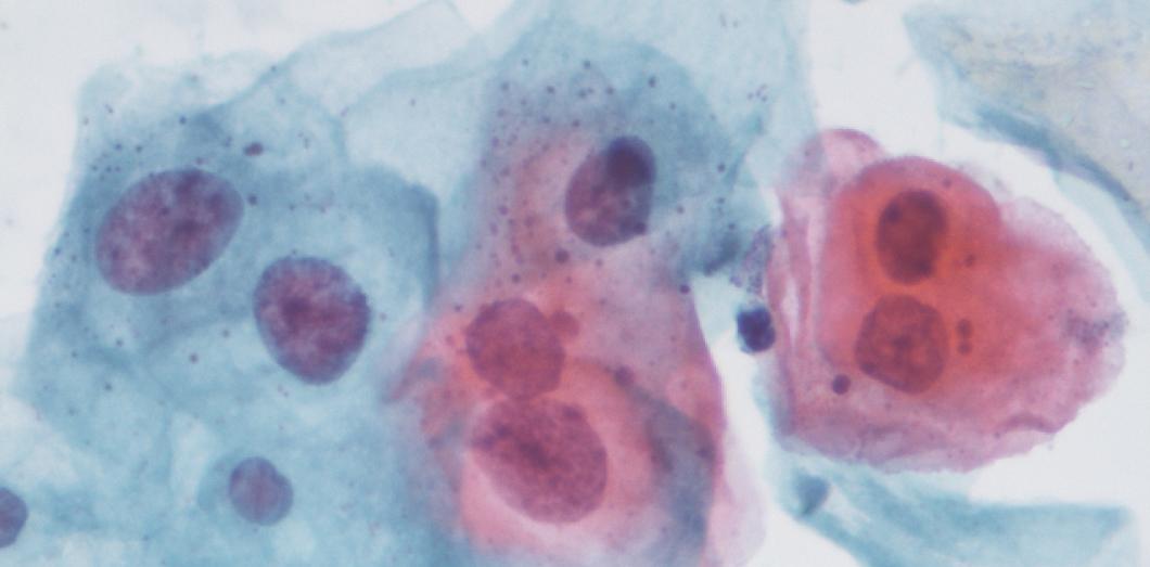 papillomavirus humain langue