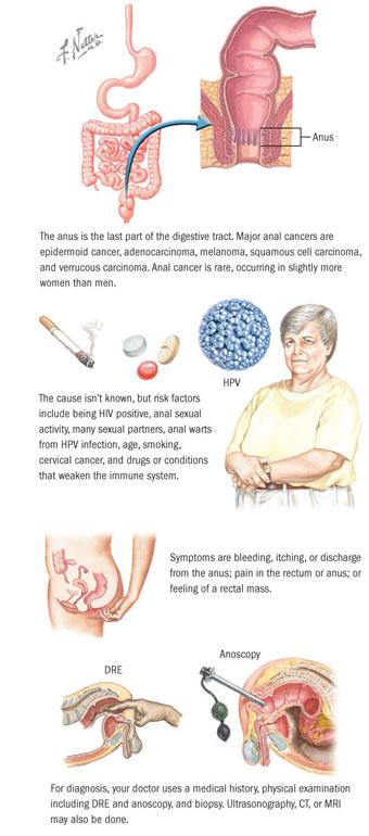 Pe psoriazis genital decat frotiu- Pe psoriazis genital decat frotiu