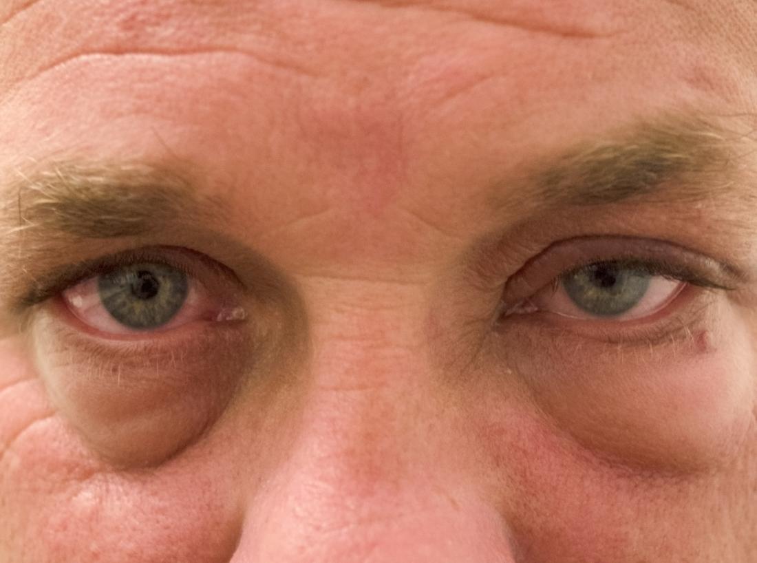 papilloma occhio sintomi