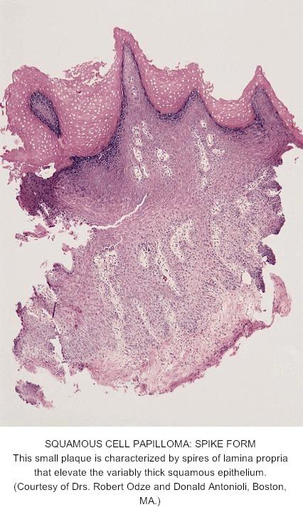 squamous papilloma esophagus location