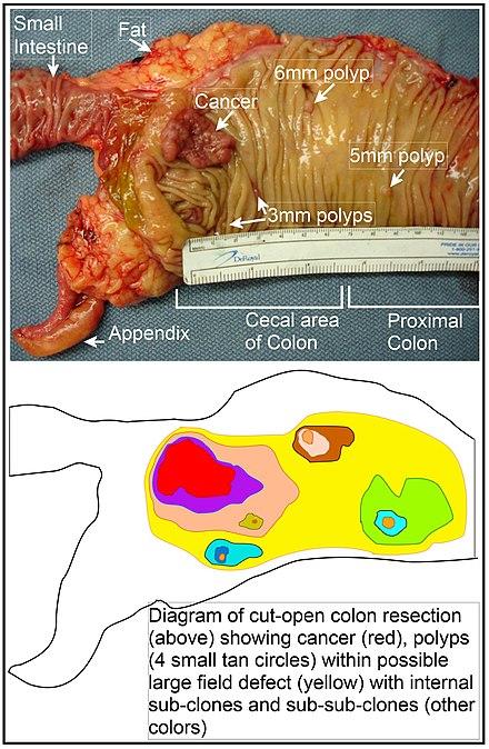 cancer malign simptome