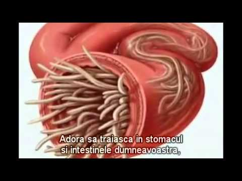 Paraziti intestinali limbrici Ascaris lumbricoides