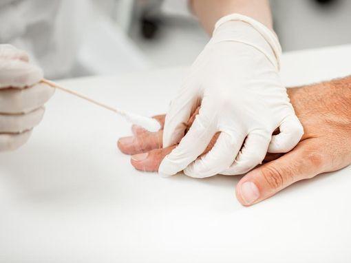 hpv contagieux pour lhomme schistosomiasis hepatic