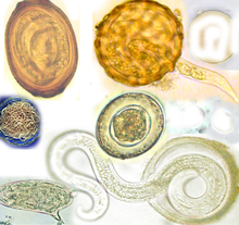 Intestinal worms natural treatments by constantin simion - Issuu