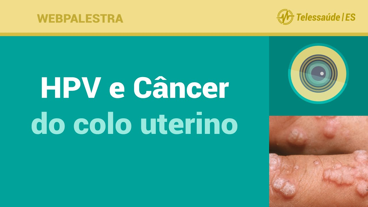 hpv cancer uterino uterine cancer ppt presentation