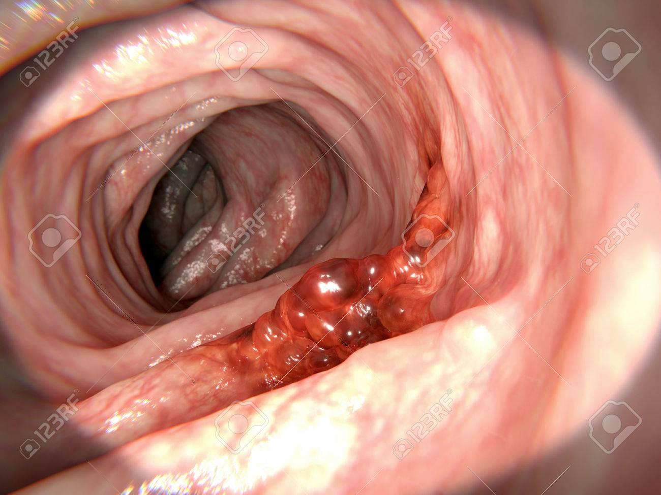 remede contre papillomavirus