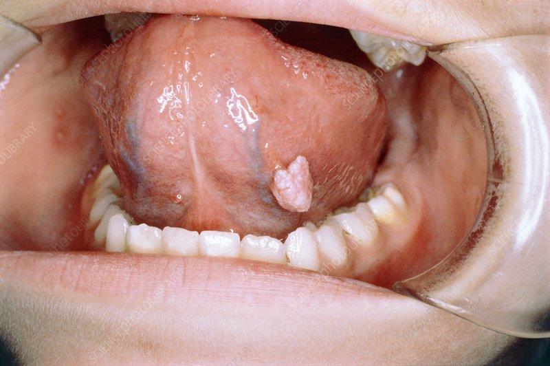 papillary urothelial carcinoma score