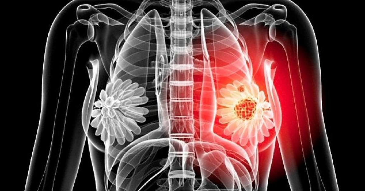 Tratament si optiuni in cancerul mamar