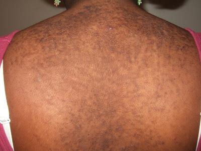 reticulated papillomatosis and minocycline papiloma humano molusco contagioso