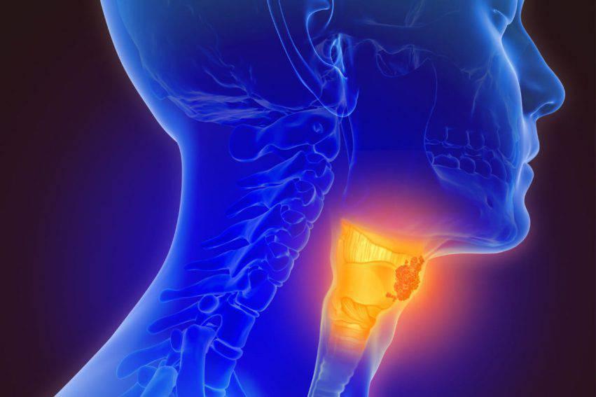 hpv e tumore alla gola