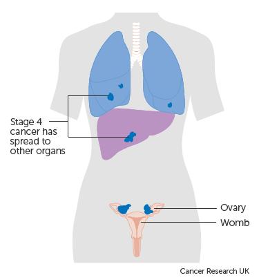 peritoneal cancer uk