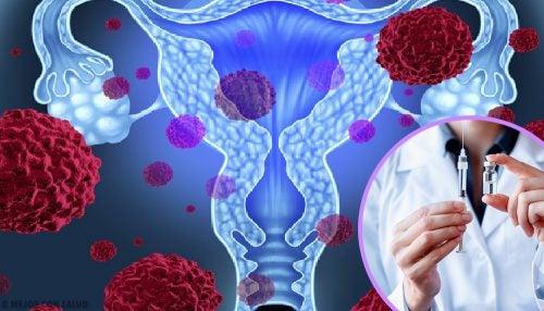 endocrine cancer stage 3 hpv virus lidsky papilomavirus