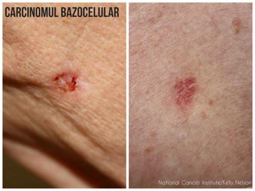 cancer de piele stadiul 1