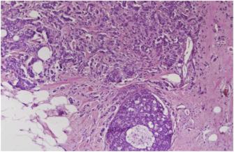 NEUROENDOCRINE TUMORS: CHOOSING APPROPRIATE IMAGING METHODS