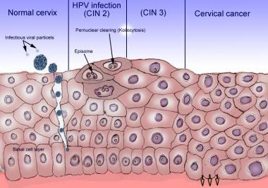 hpv papillomavirus cose human papillomavirus vaccine percentage
