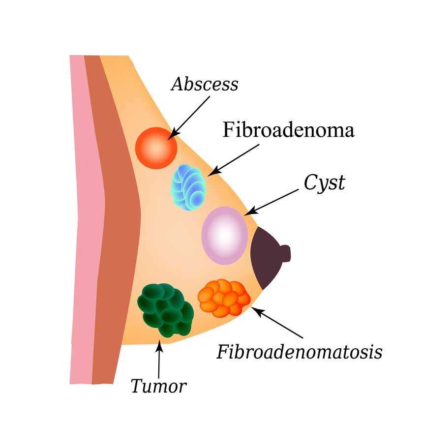 Tratamentul ligamentului papilloma