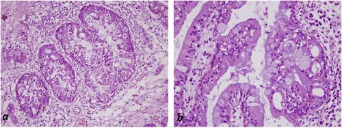 gastric cancer familial