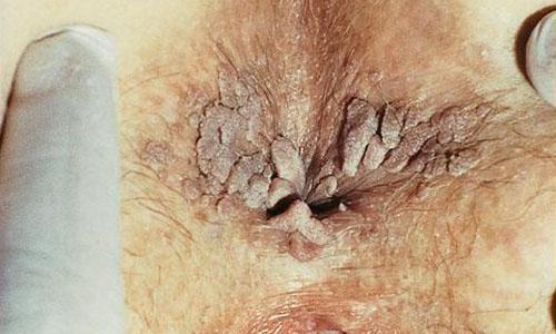 Infecții cu transmitere sexuală