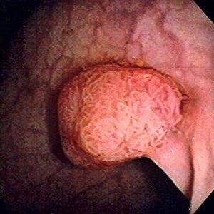 Tumori benigne vs. Tumori maligne