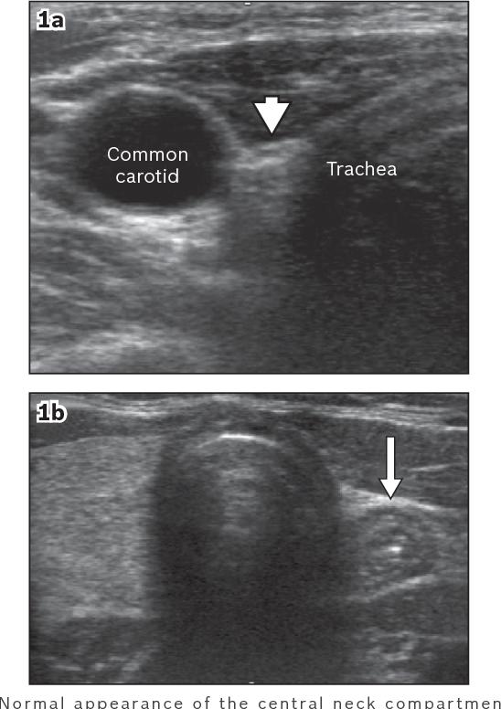 papillary thyroid cancer post thyroidectomy