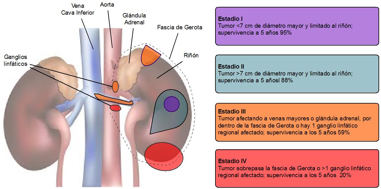 infection papillomavirus homme symptomes papillomavirus uterus symptoms