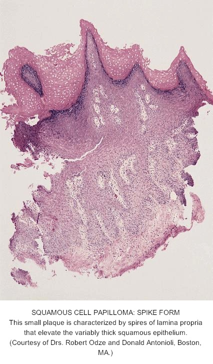 esophageal papilloma description paraziti piele om