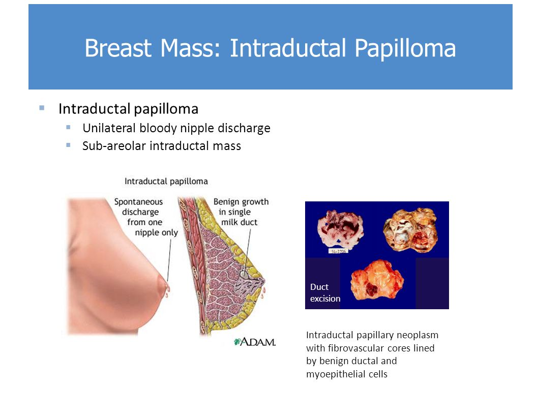 Multimodality Breast Imaging: Diagnosis and Treatment - ghise-ioan.ro