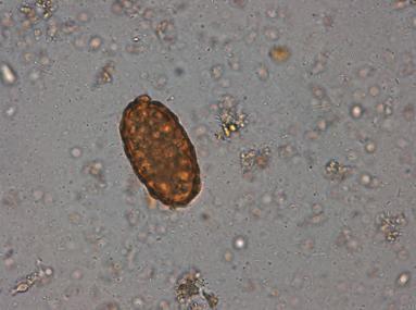 oua de culoare neagra de paraziti intestinali