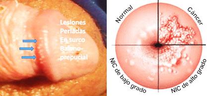 virus papiloma humano nivel 1