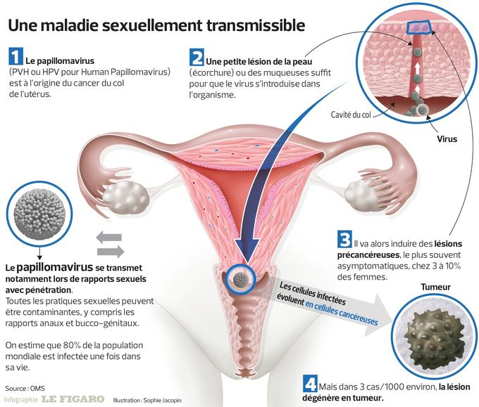 que es el virus del papiloma genital humano
