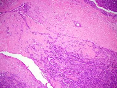 ductal papilloma medscape