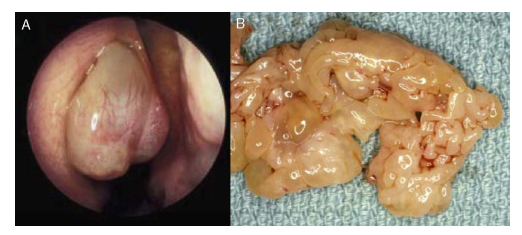 virus del papiloma senos oxiuros analisis