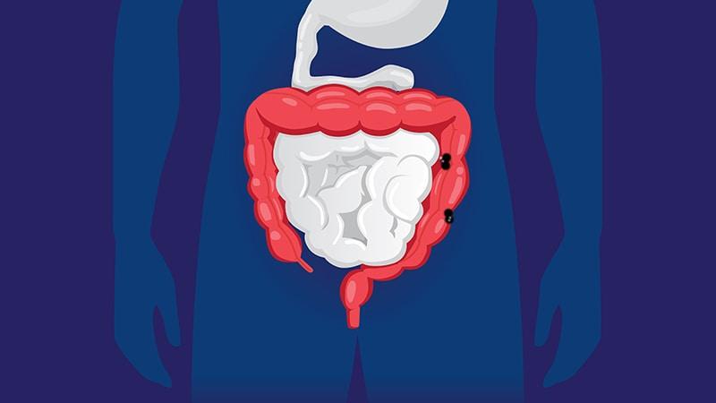 Antibioticele cresc riscul cancerului de colon?