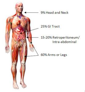 sarcoma cancer of connective tissue
