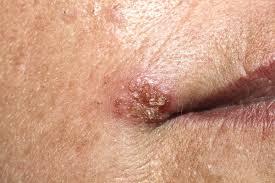 sintomas de papiloma virus humano