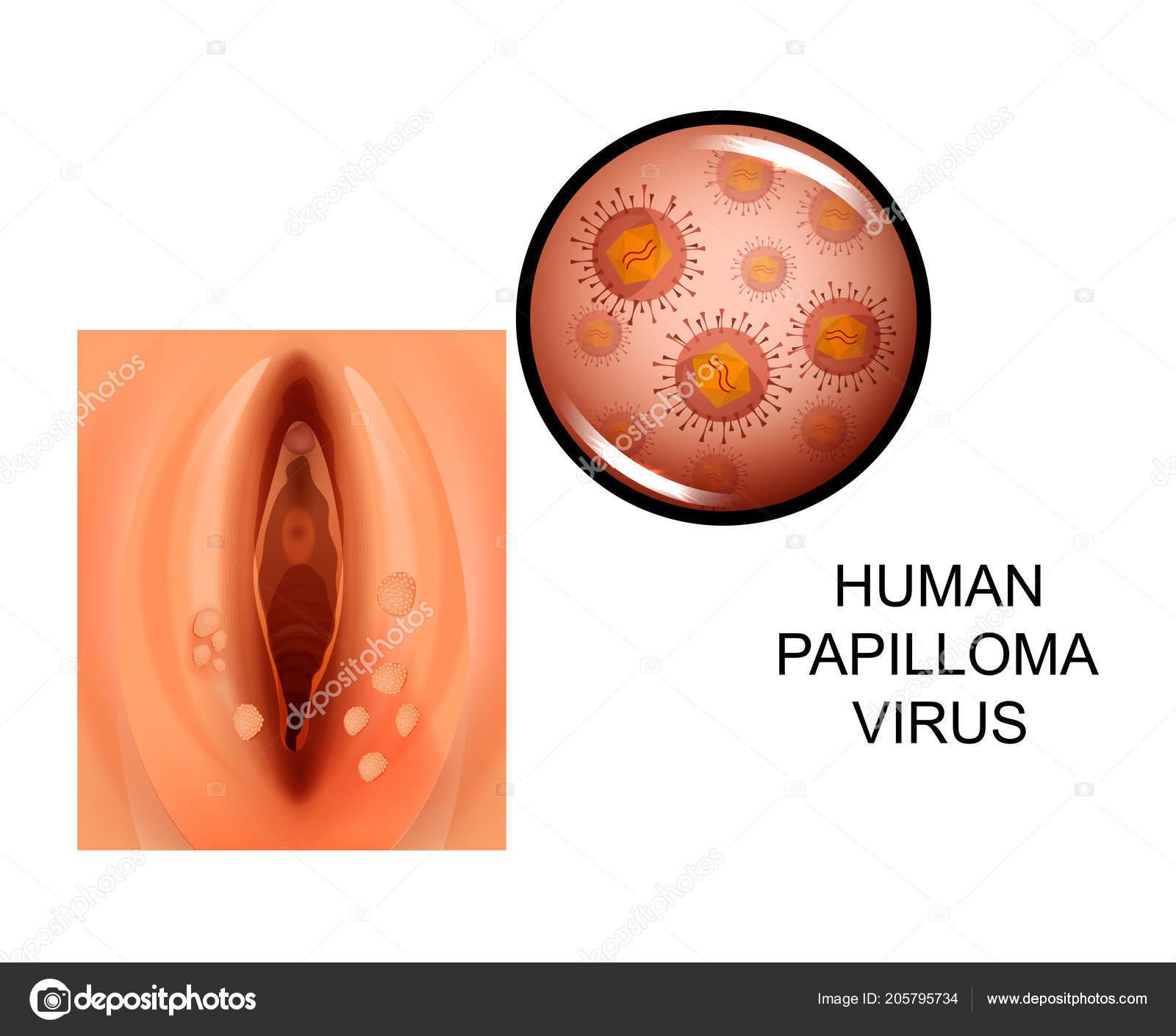 papiloma humano todo sintomas de hpv en ano