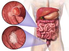 Cancerul rectal - simptome și tratament