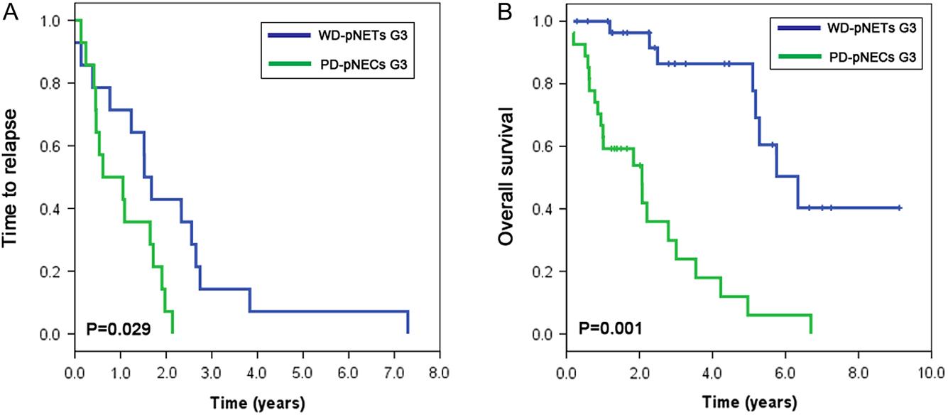 endocrine cancer pancreas prognosis