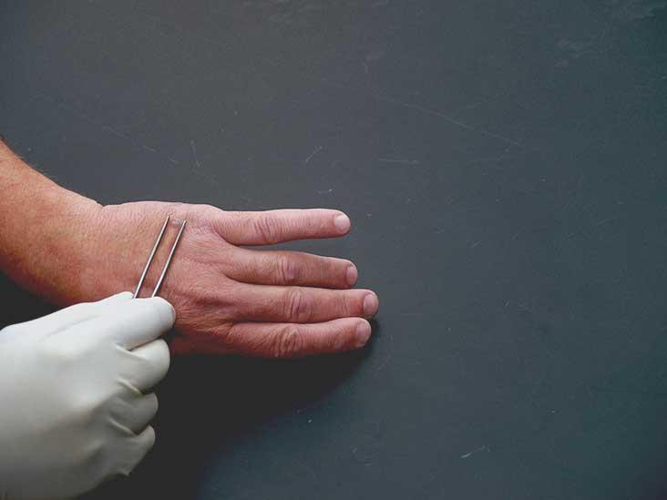 Verruca Vulgaris » LaurusMedical - Hemorrhoids, Varicose Vein, Gastroenterology, Dermatology