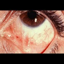 human papillomavirus infection in papiloma humano en el ano sintomas