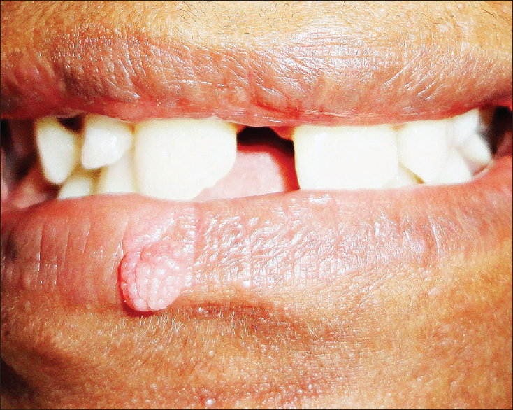papilloma lip what does a wart virus look like