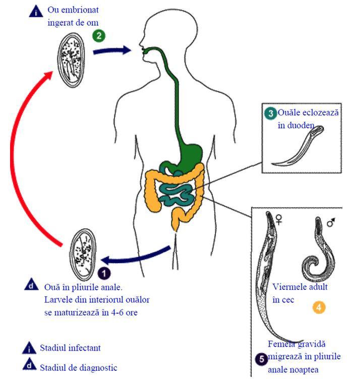 Oxiuroza (Enterobioza)