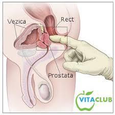 Terapia hormonală, indicată în tratamentul cancerului de prostată