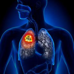 Cauzele şi factorii de risc ai cancerului pulmonar