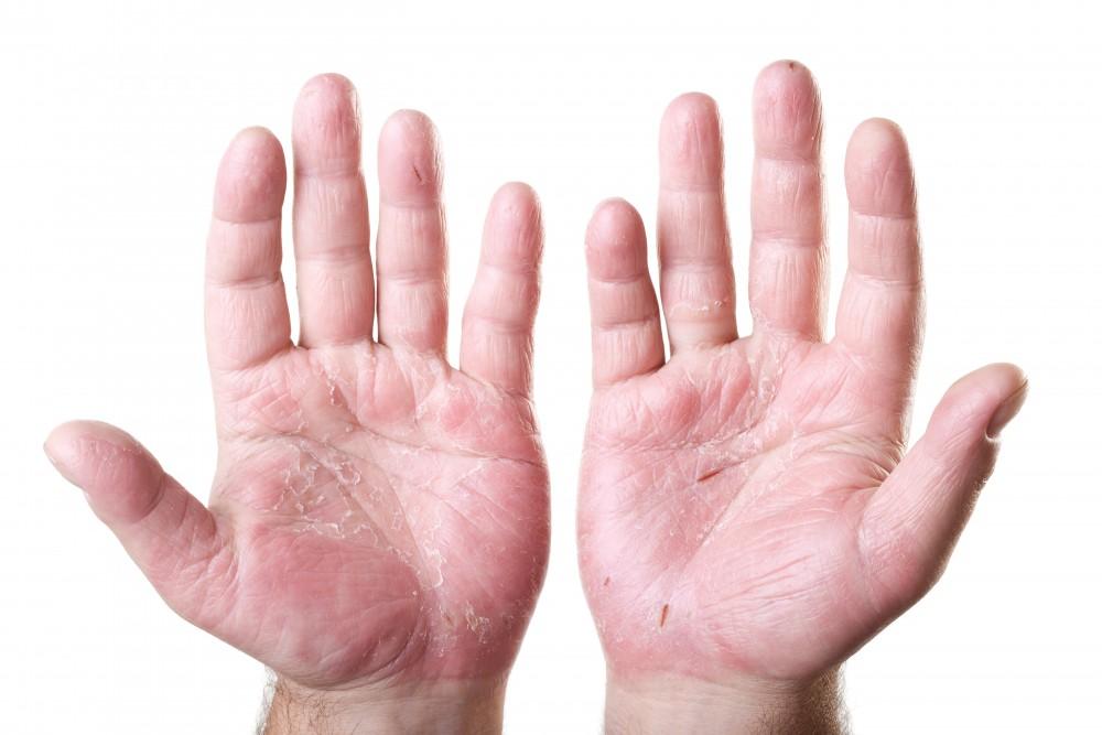 dermatita exfoliativa